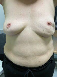 Об'єктивний огляд рак молочної залози